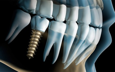 Dentadura Completa con 4 implantes