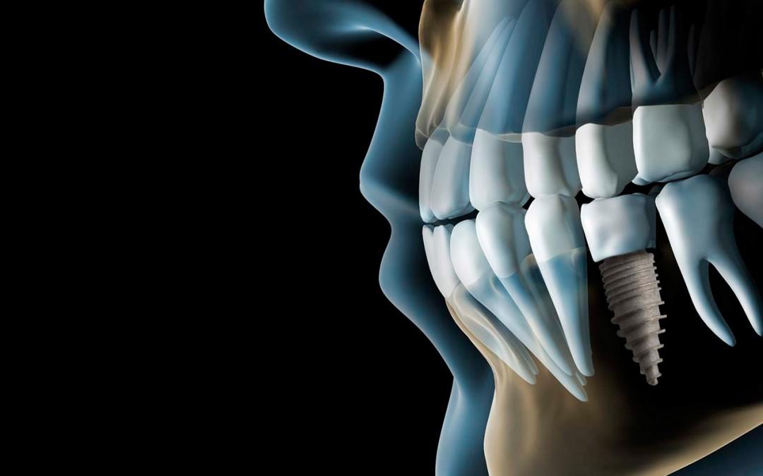 Implantologia avanzada