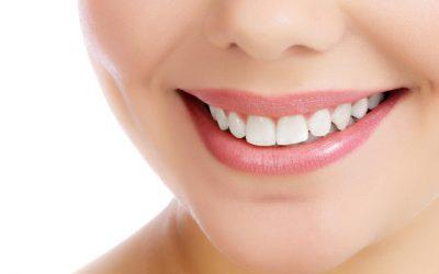Carillas dentales estéticas o frentes estéticos