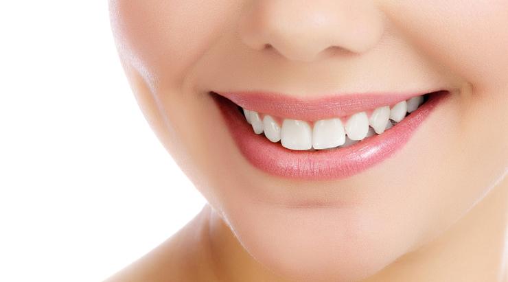 carillas dentales de resina o porcelana